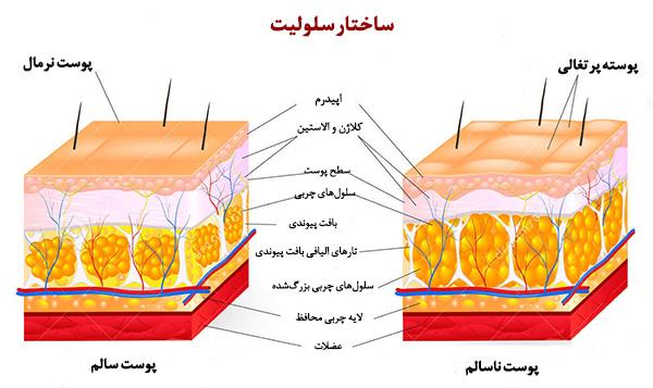 سلولیت | روش های درمان سلولیت